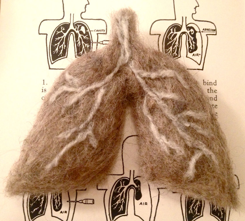 Wool lung from Romantic Disease